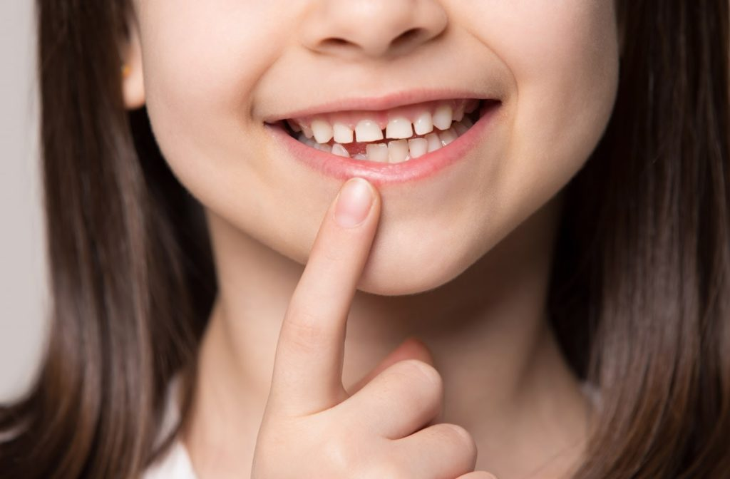 A young girl pointing at her missing baby tooth