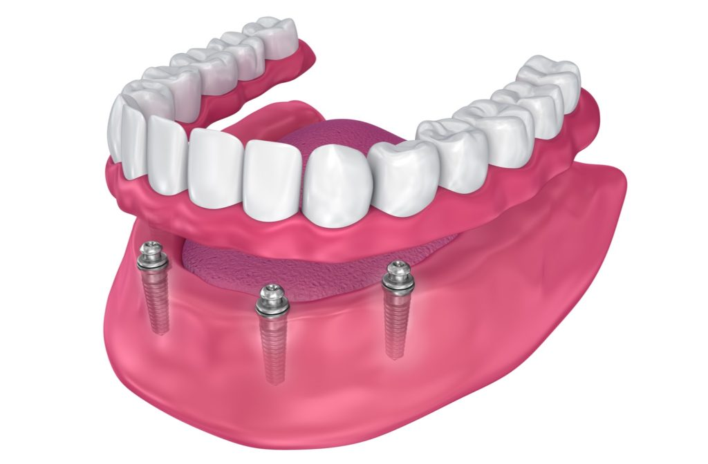 A 3D illustration of an overdenture to be seated on implants with ball attachments